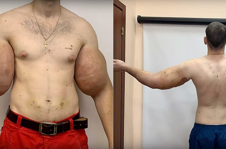 Russian 'Popeye' has 3 pounds of 'dead' muscle removed after DIY bodybuilding injections