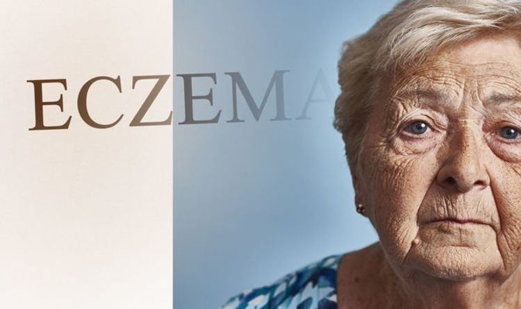 Eczema: Does this unsightly skin condition worsen with age? Experts have their say