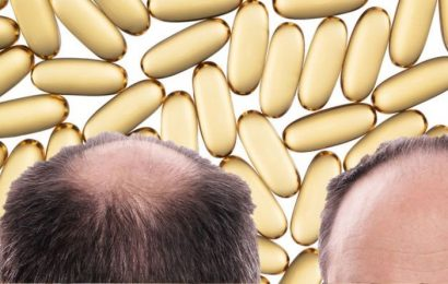Hair loss treatment: The vitamin supplement shown to prevent hair loss