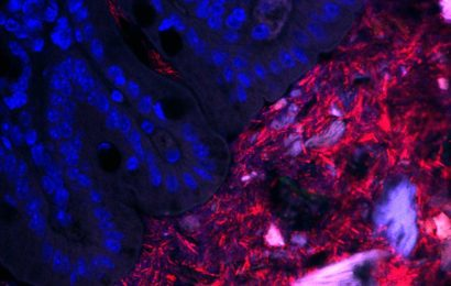 Mapping bacterial neighborhoods in the gut