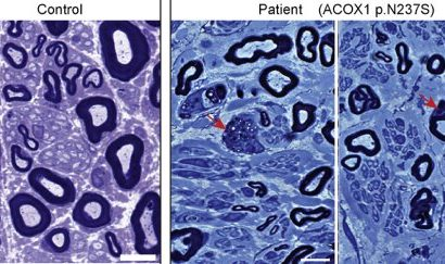 Solving the puzzle of Mitchell disease