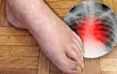 Heart attack warning – do your feet look like this? Hidden warning sign revealed