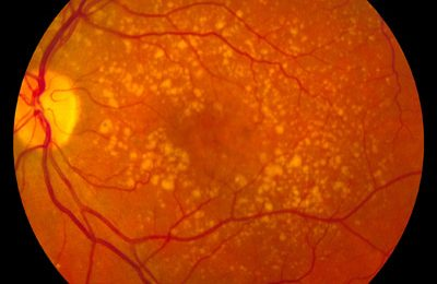 Study finds unexpected suspect in age-related macular degeneration