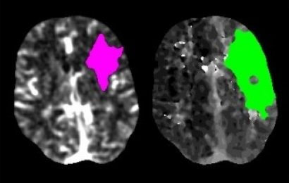 Stroke evaluations drop by nearly 40% during COVID-19 pandemic