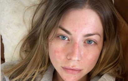 Vanderpump Rules' Stassi Schroeder Shows Off Her Facial Psoriasis in Makeup-Free Selfie: 'It's a Mood'