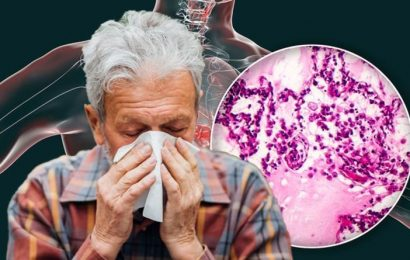 Lung cancer symptoms: Four warning signs in your cough to watch out for