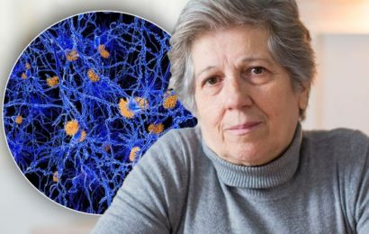 Dementia warning – when your memory loss could be caused by something serious