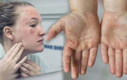 Coronavirus symptoms update: Two peculiar signs found on your skin warning of an infection
