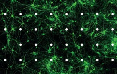 Calcium channel subunits play a major role in autistic disorders