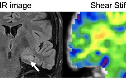 Using magnetic resonance elastography to detect epilepsy