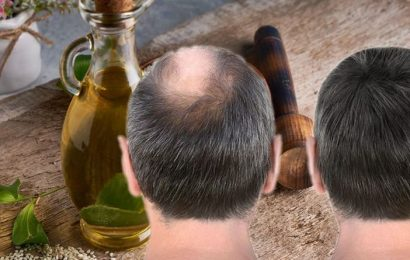 Hair loss treatment: Applying this oil for three months led to 'complete hair regrowth'