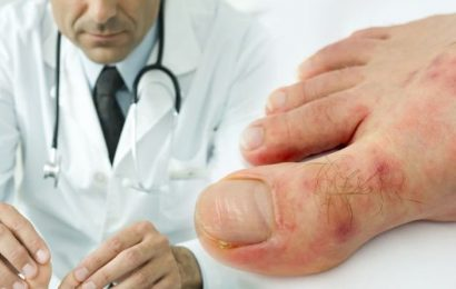 Coronavirus symptoms update: What are COVID toes? Symptoms to spot and how to treat them