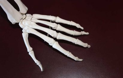 Is rheumatoid arthritis two different diseases?