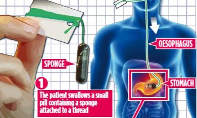 New 'sponge on a string' test can pick up early signs of cancer