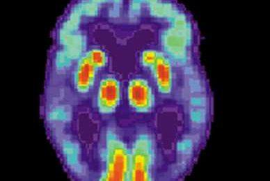 Identifying early symptoms of Alzheimer's disease