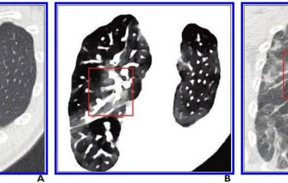 Spectral CT improves detection of early-stage COVID-19
