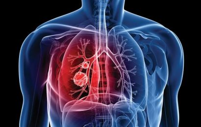 Improvements in lung cancer care