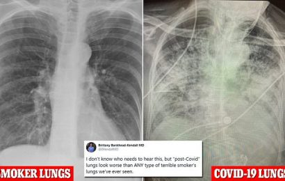 Post-COVID lungs look FAR worse than even the worst smoker's