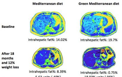 Green Mediterranean diet cuts non-alcoholic fatty liver disease by half