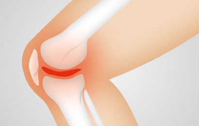 Study shows opioid use among US patients with knee osteoarthritis costs 14 billion dollars in societal costs