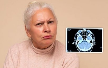 Dementia symptoms: When is memory loss a sign of the brain condition?