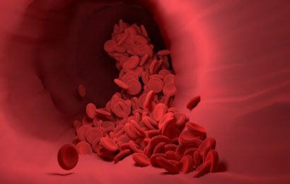 Platelets may play key role in development of lupus