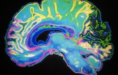 Study shows how the brain quickly adjusts to group opinions