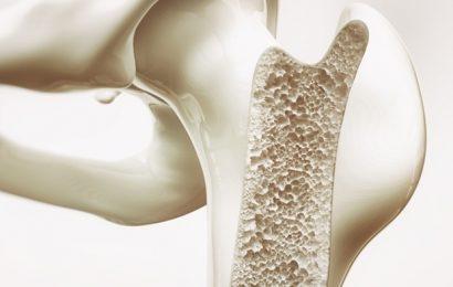 Early immunosuppressive biomarkers could predict bone regeneration after trauma