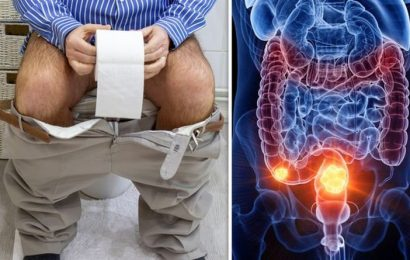 Bowel cancer symptoms: Slimy poo could indicate the deadly disease