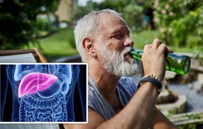 Alcoholic fatty liver disease symptoms: A doctor warns of two of earliest warning signs