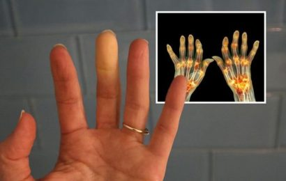 Arthritis symptoms: Six telltale warning signs on your skin – what to look for