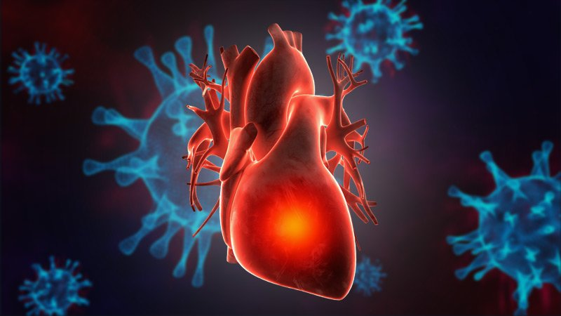 COVID Plus MI Confers Poor Prognosis; 1 in 3 Die in Hospital