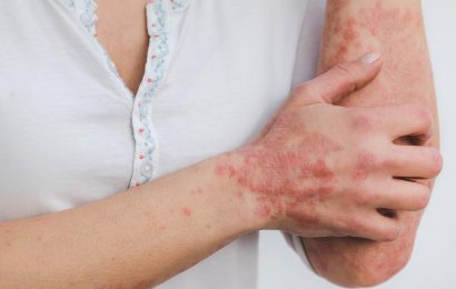 New factor in the development of psoriasis discovered