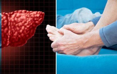 Non-alcoholic fatty liver disease symptoms: Three visual clues the damage is 'permanent'