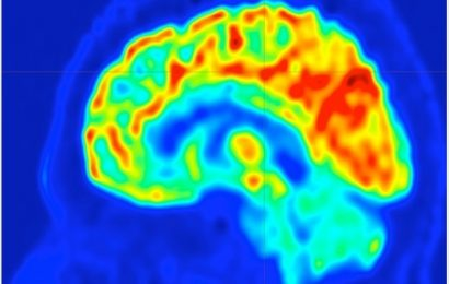 UVA's imaging approach could help identify brain surgery targets to stop epilepsy seizures