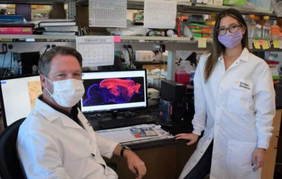 Autism gene study finds widespread impact to brain's growth signaling network