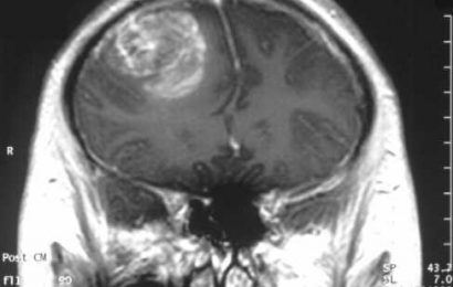 Case study shows patient on ketogenic diet living fully with IDH1-mutant glioblastoma