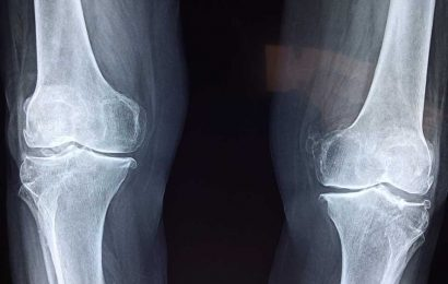 Study supports gene therapy as a promising treatment for soft bone disease