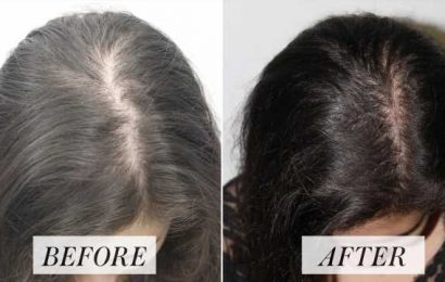The Hair Loss Treatment You've Probably Never Heard Of