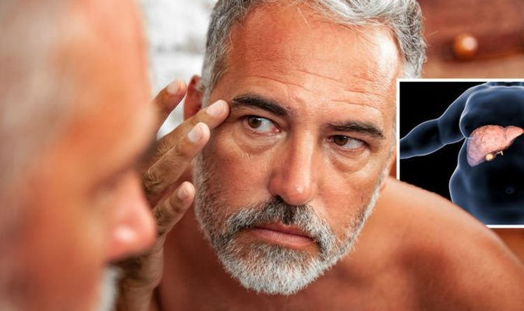 Fatty liver disease symptoms: The warning sign on your face of the serious condition
