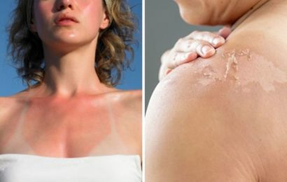 Should I peel my sunburn? The 4 ways to heal sunburn quickly