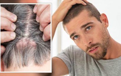 Do you have an itchy scalp? Warning signs that your rash is a 'contagious' scalp infection
