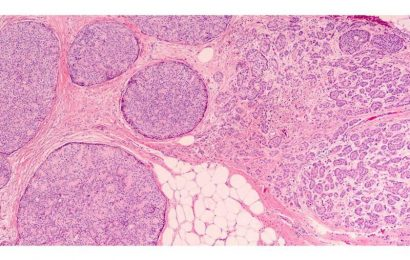 AI model enhances histologic grading of breast cancer