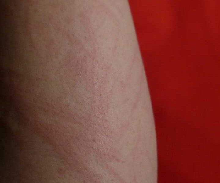 Childhood and adult chronic spontaneous urticaria: Time to develop different management strategies?